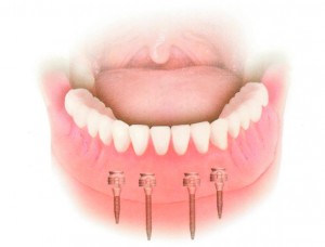 Cirugías e implantes - El Dentista Barcelona
