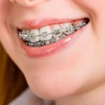 ortodoncia-el-dentista