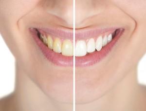 blanqueamiento dental El Dentista Barcelona